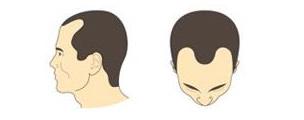 Escalas de alopécia