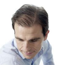 Soluções Alopecia avançada