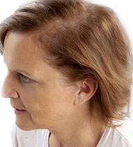 Alopecia avançada