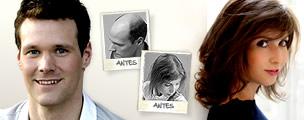 Sistemas de cabelo natural Hair & Hair