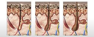 Tratamento: Queda de cabelo pós-parto